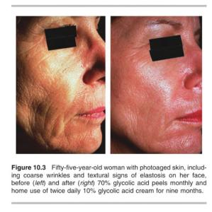 Kết quả sau 9 tháng của bệnh nhân 55 tuổi được điều trị da lão hoá, nhiều nếp nhăn và chảy xệ với liệu trình lột da hoá học 70% glycolic acid hàng tháng và sử dụng kem chứa 10% glycolic acid mỗi ngày 2 lần