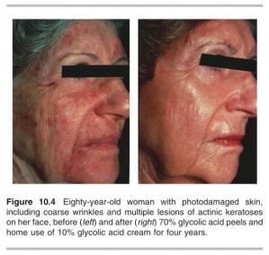 Kết quả sau 4 năm điều trị của bệnh nhân bị chứng dày sừng quang hoá với rất nhiều nếp nhăn bằng lột da ở nồng độ 70% và sử dụng kem có chứa 10% glycolic hàng ngày.